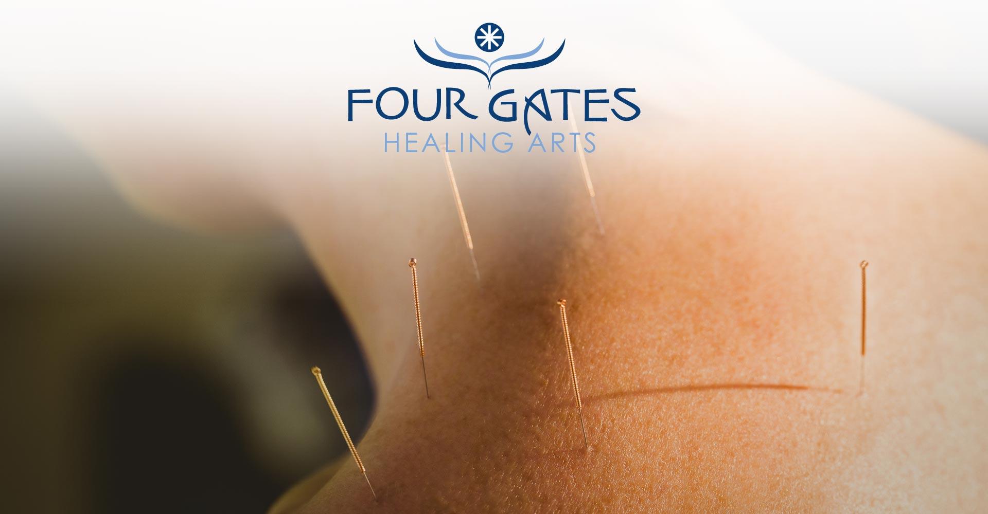 slide-acupuncture